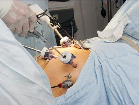 Λαπαροσκοπική Διόρθωση Κιρσοκήλης Με Απολίνωση Της Έσω Σπερματικής Φλέβας