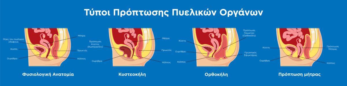 Τύποι Πρόπτωσης (κυστεοκήλη, ορθοκήλη, πρόπτωση μήτρας) γεννητικών οργάνων